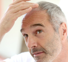 Hair Loss Does Not Have To Be Permanent